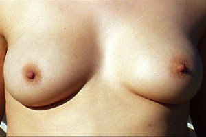 Breasts-1
