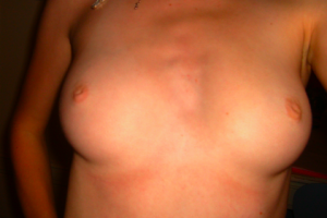 Breasts2